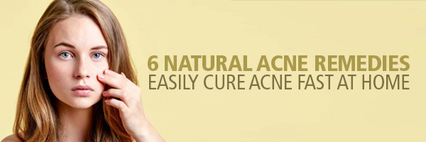 6 Natural Acne Remedies