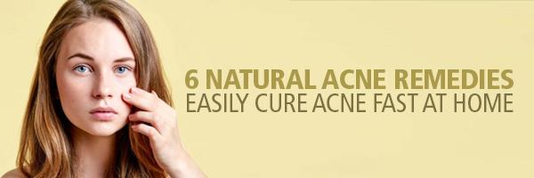 6 Natural Acne Remedies