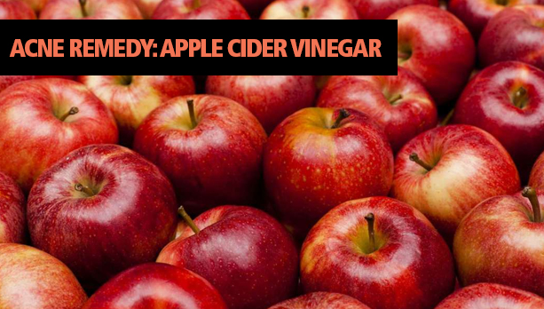 Acne Remedy Apple Cider Vinegar
